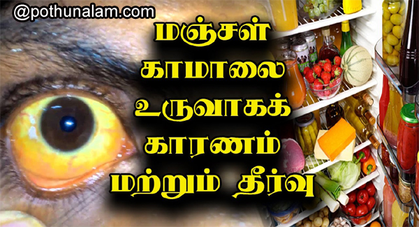 Manjal kamalai treatment in tamil