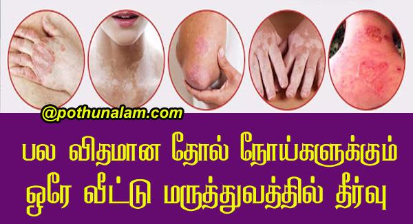 Skin diseases treatment in tamil