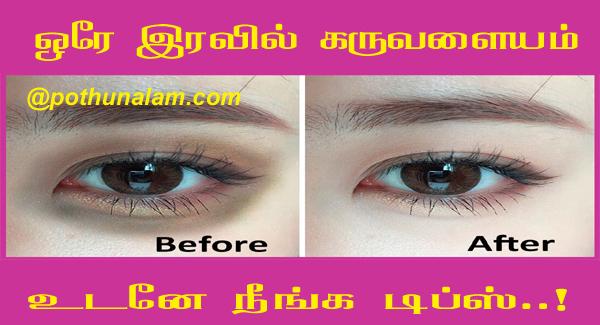 Dark circles under eye tamil