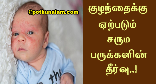 baby acne treatment on face
