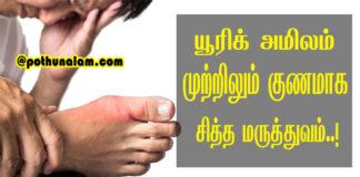 uric acid treatment in tamil