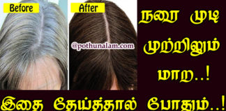 White hair Problem Solution In Tamil