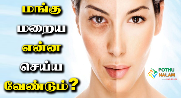 melasma treatment in tamil