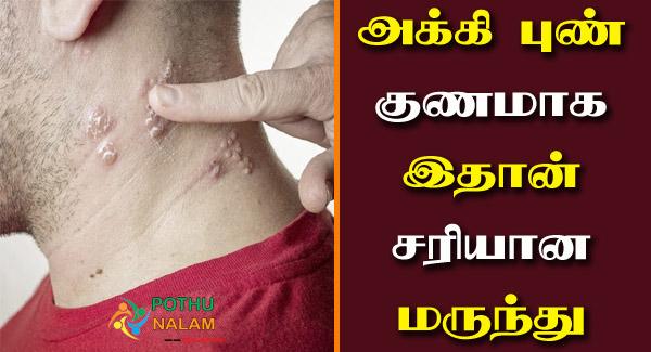 Akki Disease Treatment in Tamil